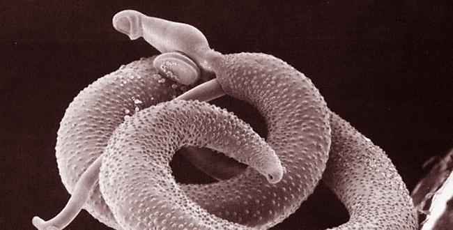 صورة مرض البلهارسيا , داء البلهارسيا اللعين
