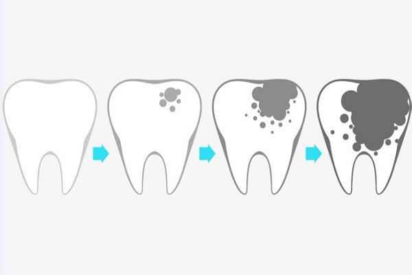 بالصور علاج تسوس الاسنان , لماذا نصاب بتسوس الاسنان 4798 2