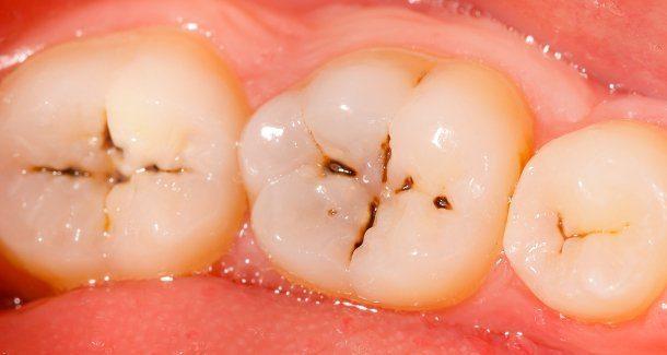 صورة علاج تسوس الاسنان , لماذا نصاب بتسوس الاسنان