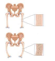 بالصور مرض الكساح , كيفية علاج مرض الكساح 5732 2