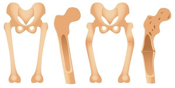 بالصور مرض الكساح , كيفية علاج مرض الكساح 5732