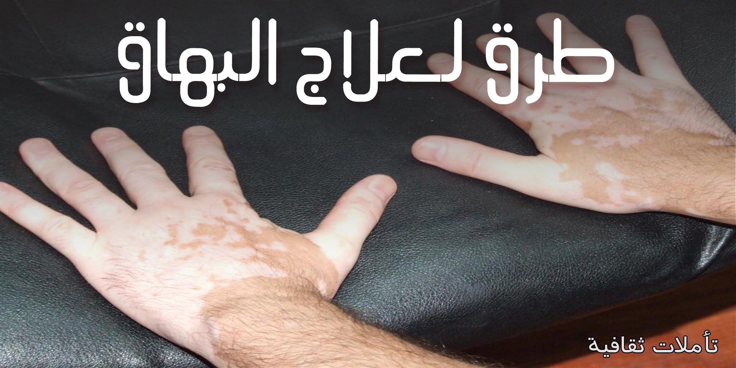 صور علاج البرص , افضل علاج مستخدم لعلاج البرص