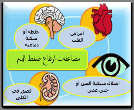 صوره اسباب ارتفاع ضغط الدم , ما هى اسباب ارتفاع ضغط الدم