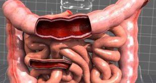 صور مرض القولون , تعرف على مرض القولون