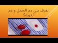 صوره الفرق بين دم الدورة ودم الحمل , هناك فرق بين دم الحمل والدورة
