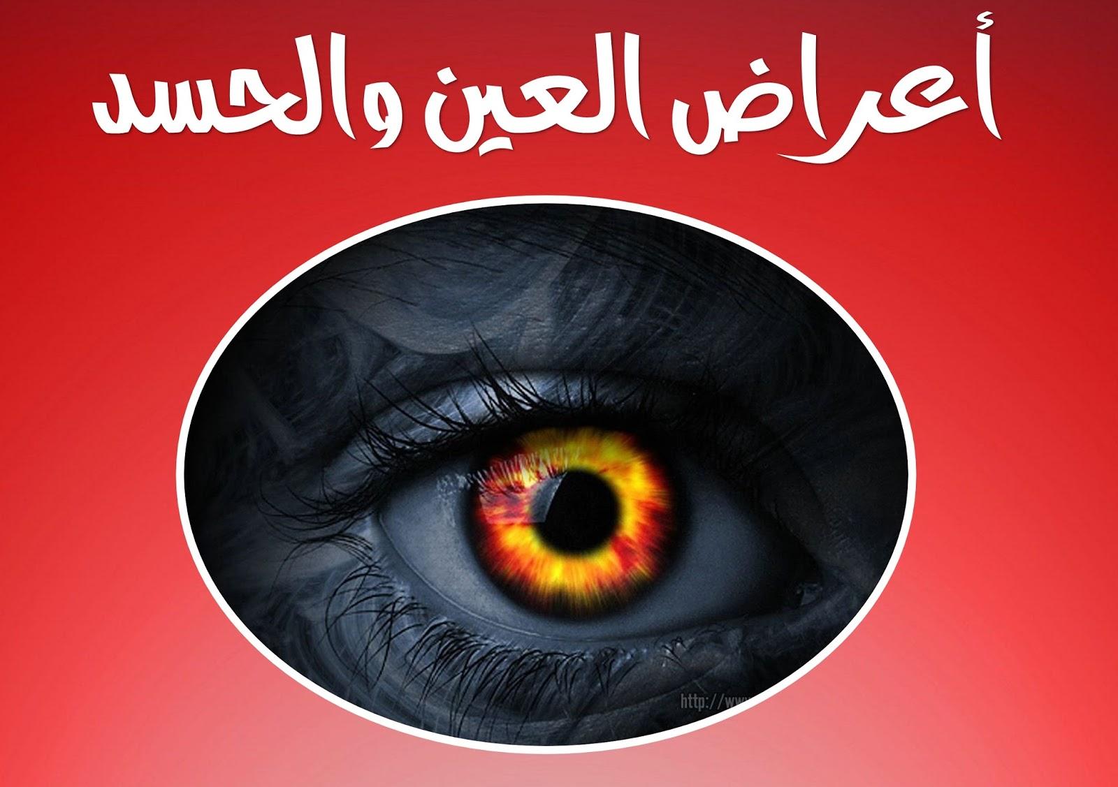 بالصور علامات الحسد , اعراض الحسد وعلاجه 3311 2