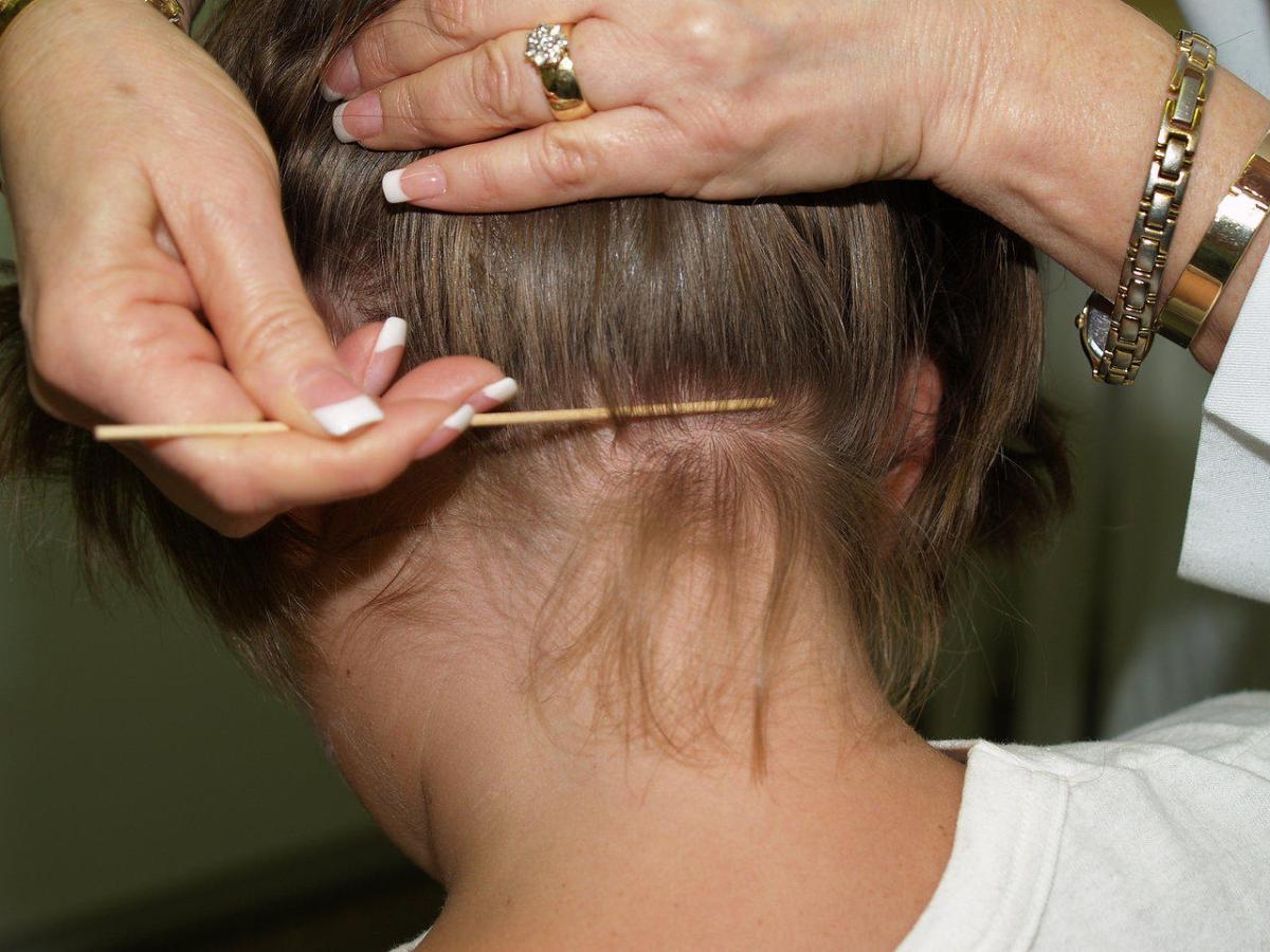 بالصور التخلص من القمل , افضل طرق لعلاج القمل 3468 2