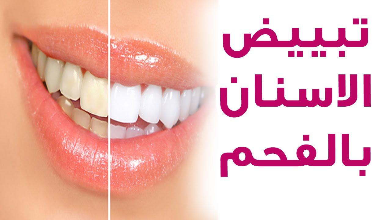 صوره خلطات تبيض الاسنان , طرق طبيعيه لتبيض الاسنان