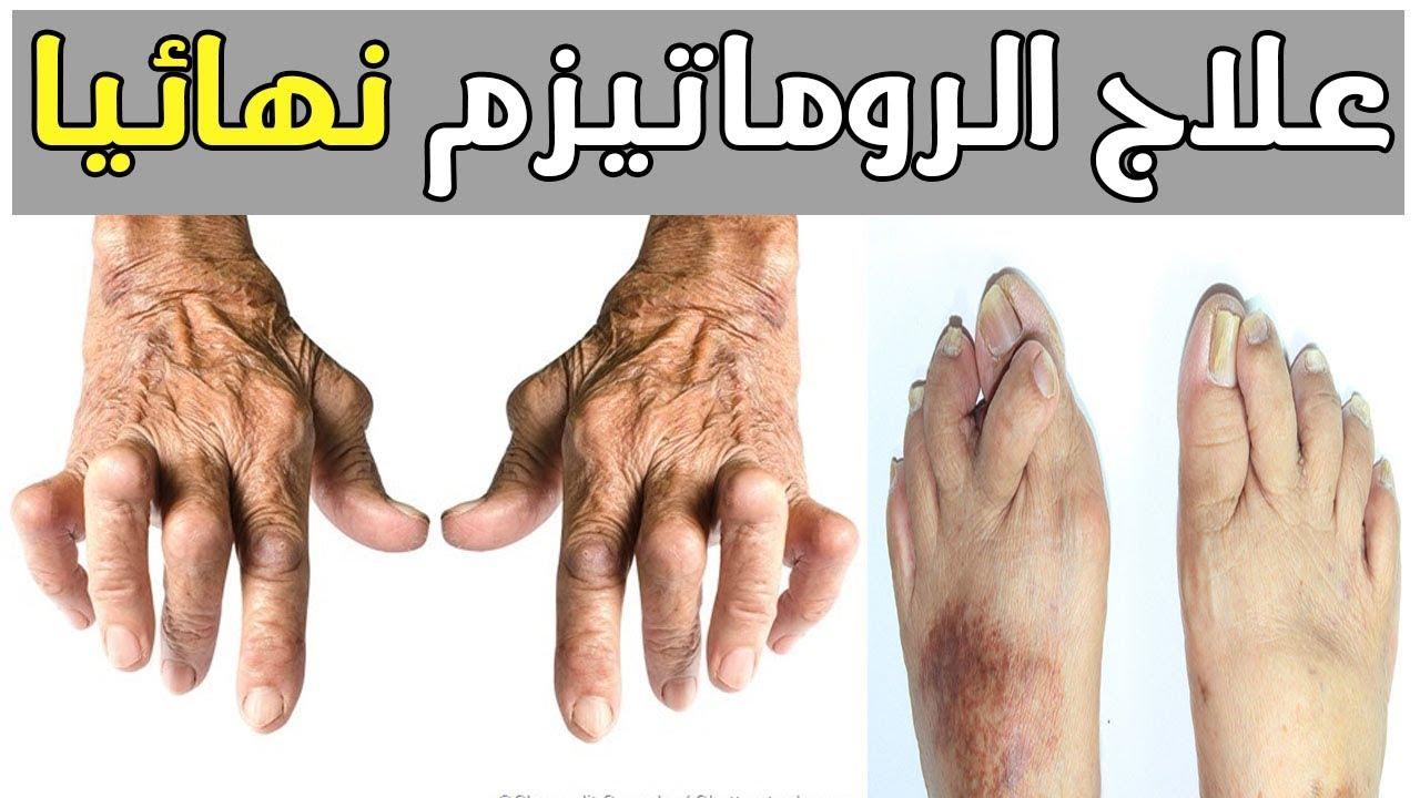 بالصور اعراض الروماتيزم , الروماتيزم اعراضه وعلاجه 3516 2