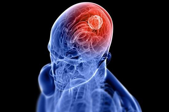 صورة اعراض سرطان الدماغ , علامات الاصابة بمرض سرطان المخ