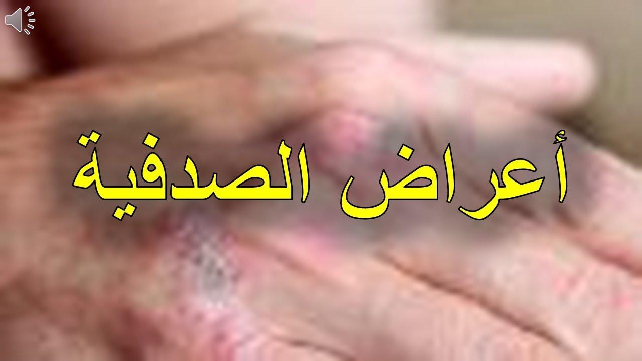 صور اعراض الصدفية , تعرف على مرض الصدفية واعراضه
