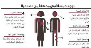 اعراض الصدفية , تعرف على مرض الصدفية واعراضه