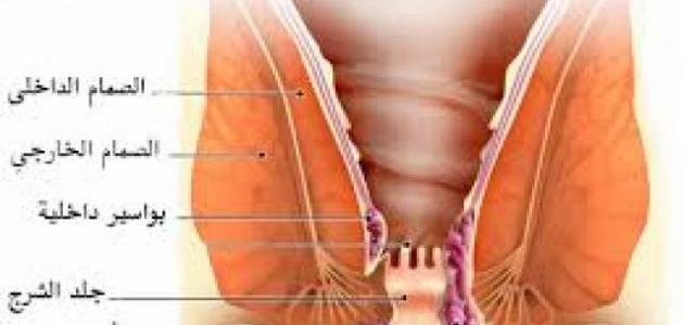 صور اسباب البواسير , علاج البواسير و اعراضها