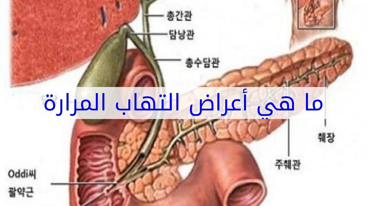 بالصور اعراض المرارة , الامراض المزمنه و اعراضها 2530 2