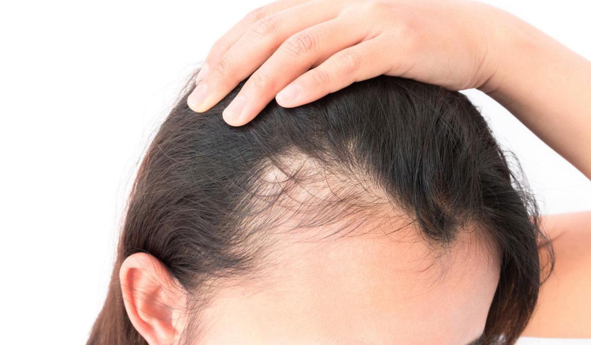 بالصور علاج تساقط الشعر , الشعر و مشاكله و طرق علاجه 2591 1