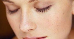 بالصور علاج البشرة الدهنية , مشاكل البشره و الوجه 2648 3 310x165