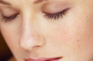 صورة علاج البشرة الدهنية , مشاكل البشره و الوجه