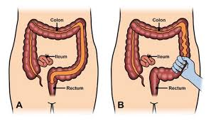 بالصور اعراض القولون العصبي عند النساء , تعرف على مرض القولون العصبى و اعراضة 312 1