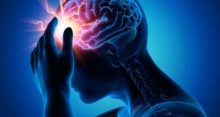 بالصور مرض الصرع , ما هو الصرع واسبابه وعلاجه 3147 1.png 310x165