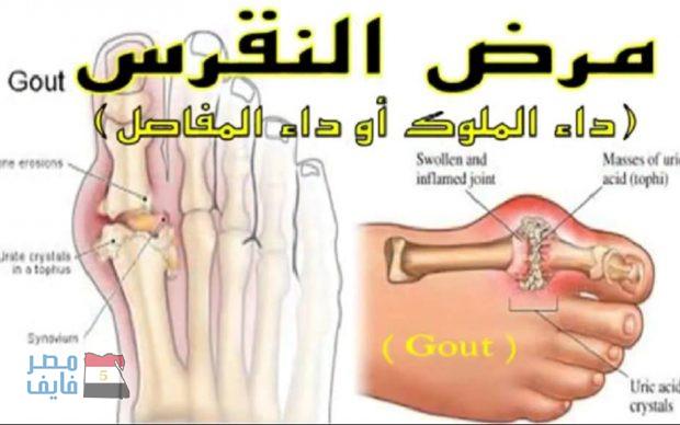 بالصور علاج النقرس , تعرف على مرض النقرس و اسبابه و العلاج منه 320 2