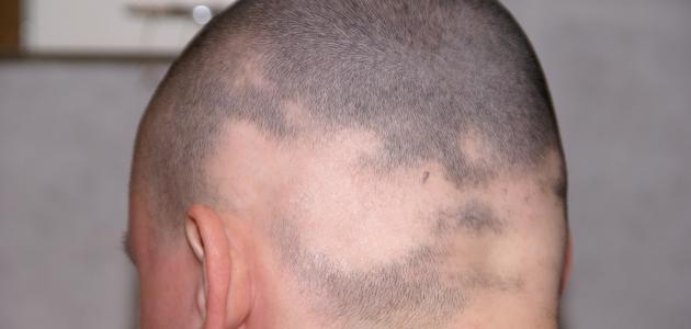 صوره مرض الثعلبة , تعرف على مرض الثعلبة و اعراضة و علاجة