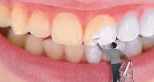 صور كيفية تبييض الاسنان , كيف نجعل اسناننا ناصعة البياض