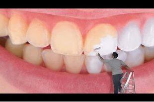 صوره كيفية تبييض الاسنان , كيف نجعل اسناننا ناصعة البياض