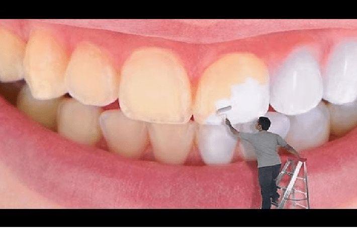 بالصور كيفية تبييض الاسنان , كيف نجعل اسناننا ناصعة البياض 4289