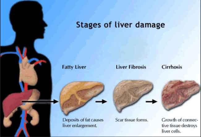 بالصور علاج تليف الكبد , تليف الكبد انتشر بسبب الجهل 5513 2