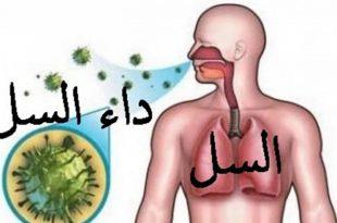 صوره علاج مرض السل , تعرف على مرض السل و طرق العلاج منه