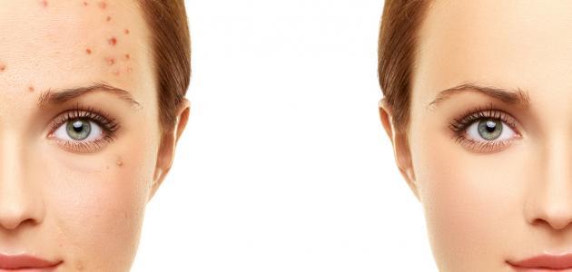 صورة ازالة حبوب الوجه , تخلص من حبوب البشره فى اسرع وقت