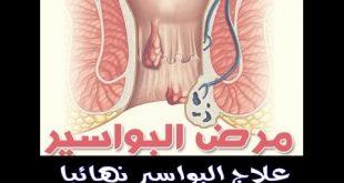 صور علاج البواسير , كيف تعالج البواسير