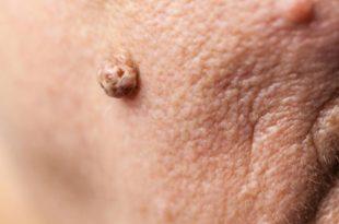 صوره علاج الثاليل , الطريقة الصحيحة للعلاج من الثاليل