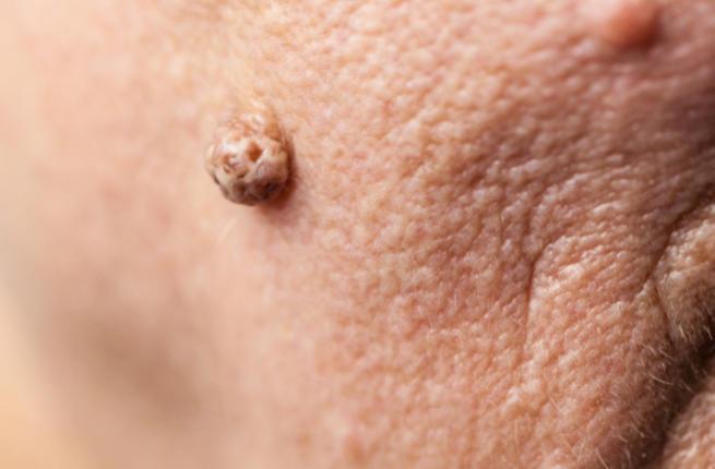 صورة علاج الثاليل , الطريقة الصحيحة للعلاج من الثاليل 5631