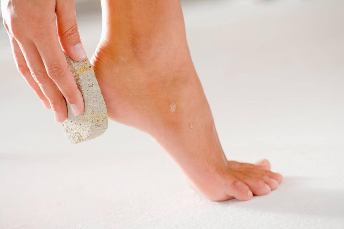 صورة التخلص من تشققات القدم , التخلص من تشققات القدم وطريقة علاجها 12007 1