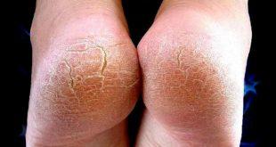 صور التخلص من تشققات القدم , التخلص من تشققات القدم وطريقة علاجها