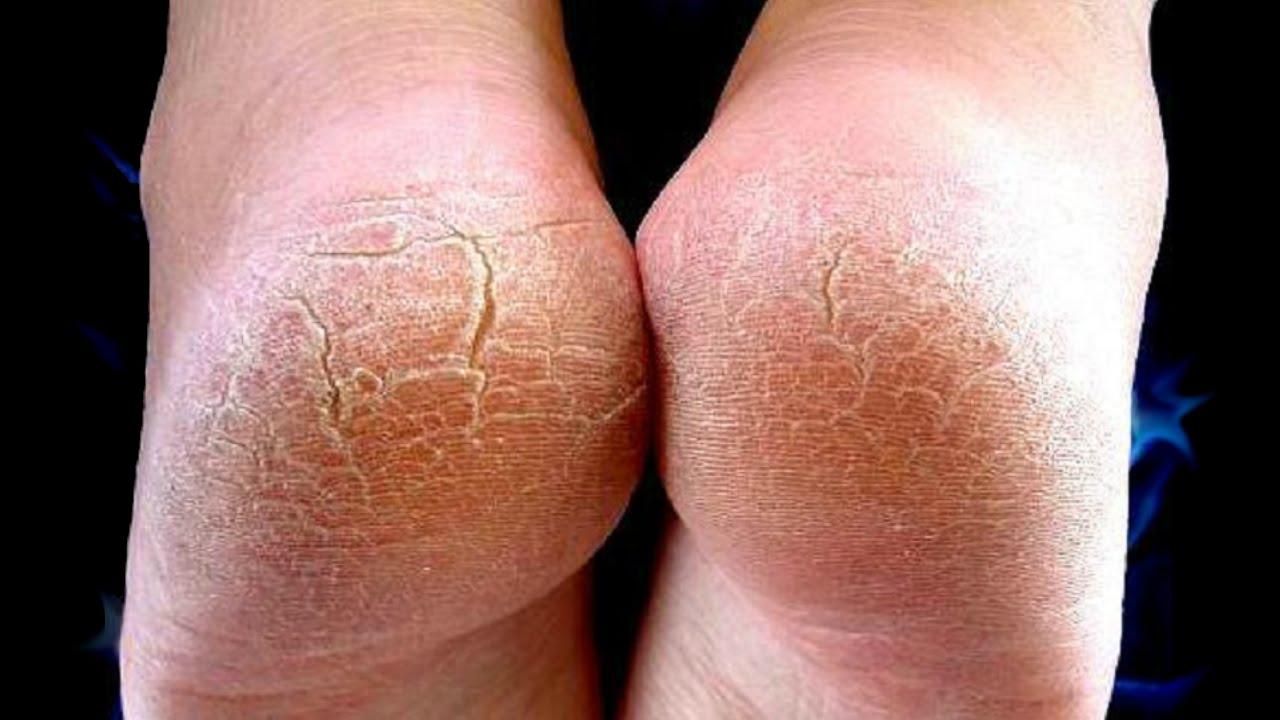 صورة التخلص من تشققات القدم , التخلص من تشققات القدم وطريقة علاجها 12007