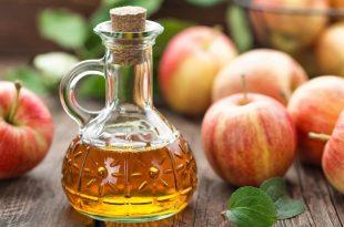 بالصور علاج الدوالي بخل التفاح , الحل السحري والفعال في علاج دوالي القدمين 12014 3 310x205