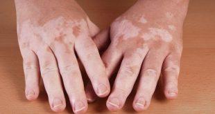 علاج البهاق , وسائل الشفاء من مرض البرص