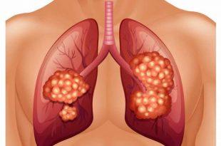 صور اعراض سرطان الرئة , مظاهر الاصابة بسرطان الرئه