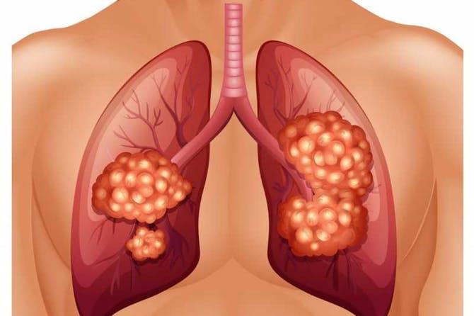 صورة اعراض سرطان الرئة , مظاهر الاصابة بسرطان الرئه