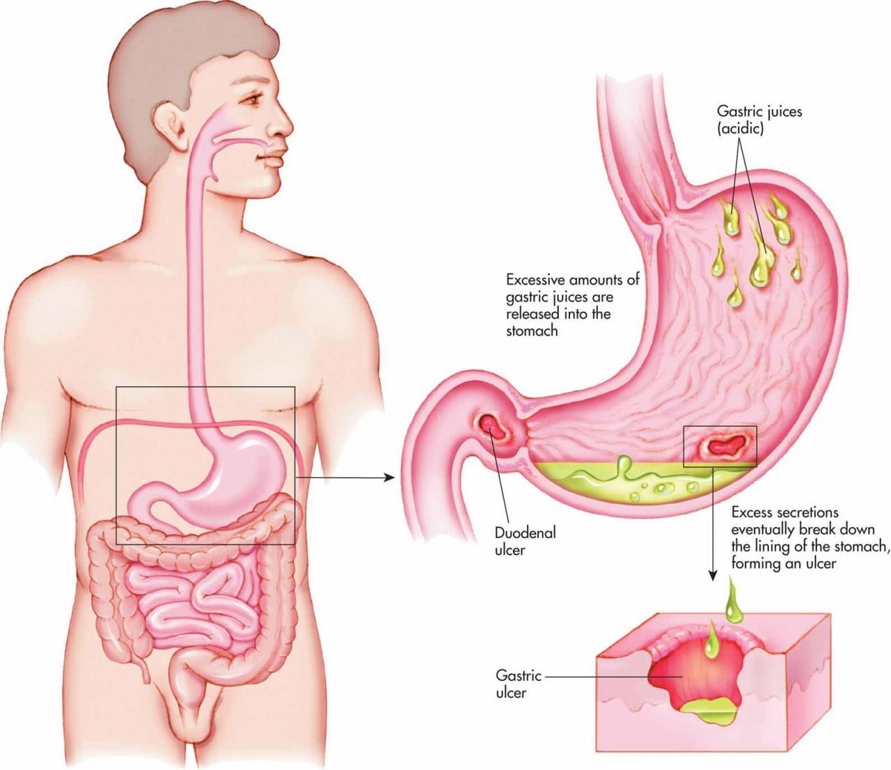 صورة علاج قرحة المعدة بالاعشاب الطبيعية , كيفيه الوقاية من قرحه المعدة 12121 2