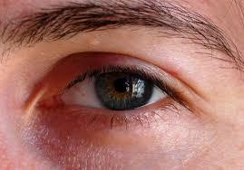 صورة علاج خدش العين , كل شىء عن خدش العين