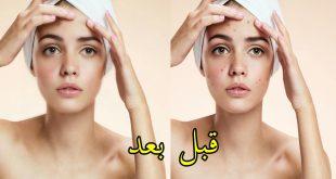 صور طريقة تصفية الوجه , طرق طبيعيه لتصفيه الوجه