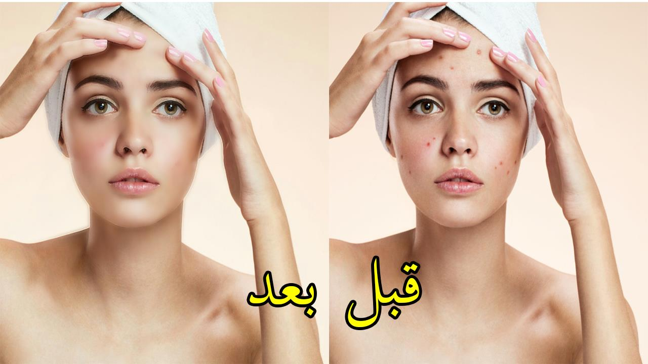 صورة طريقة تصفية الوجه , طرق طبيعيه لتصفيه الوجه