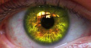 تغير لون العين بالاعشاب