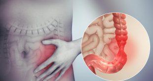 اعراض التهاب القولون