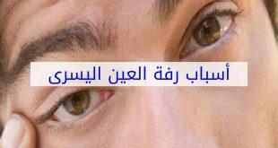 اسباب رعشة جفن العين اليسرى