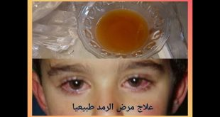 علاج الرمد,نفسك تعالجك عيناك بشكل طبيعى فى المنزل