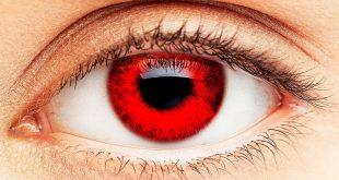 العين الحمراء,عايز تعرف ليه عيناك يوجد بها حمره